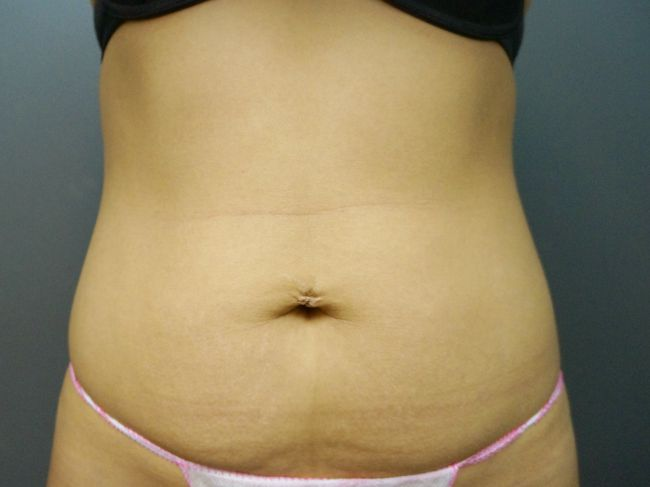 UltraShape procedure - before picture (front)