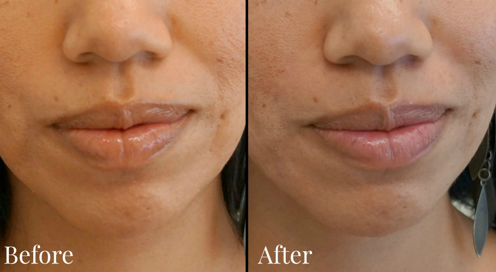 Before and after pictures with Juvederm