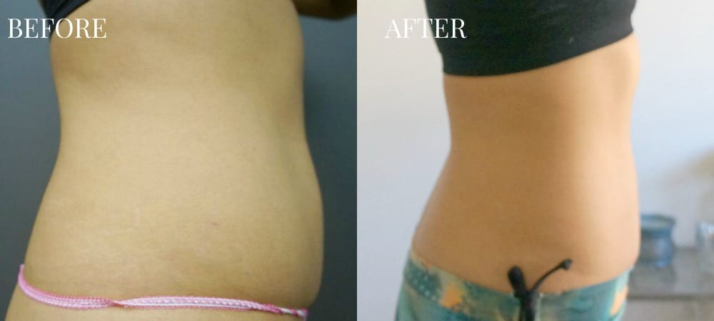 Before and after pictures (side view) of UltraShape