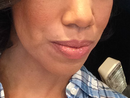 one month after Juvederm
