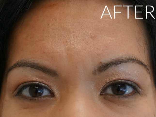 After Botox // LivingMiVidaLoca.com