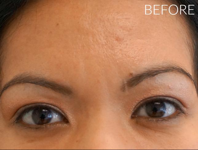 Before Botox // LivingMiVidaLoca.com