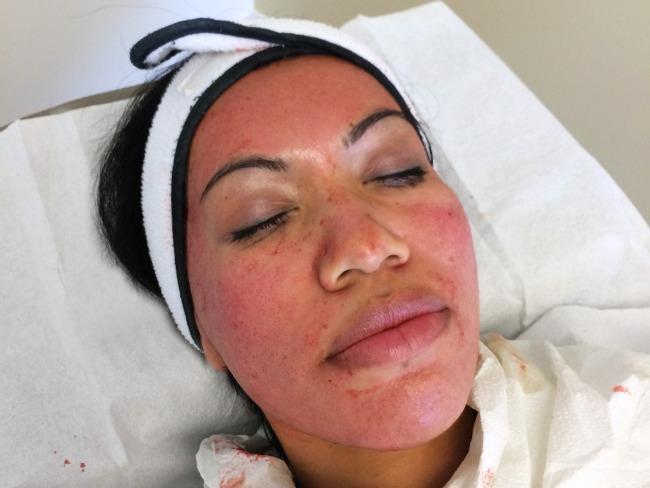 Dermapen procedure // livingmividaloca.com