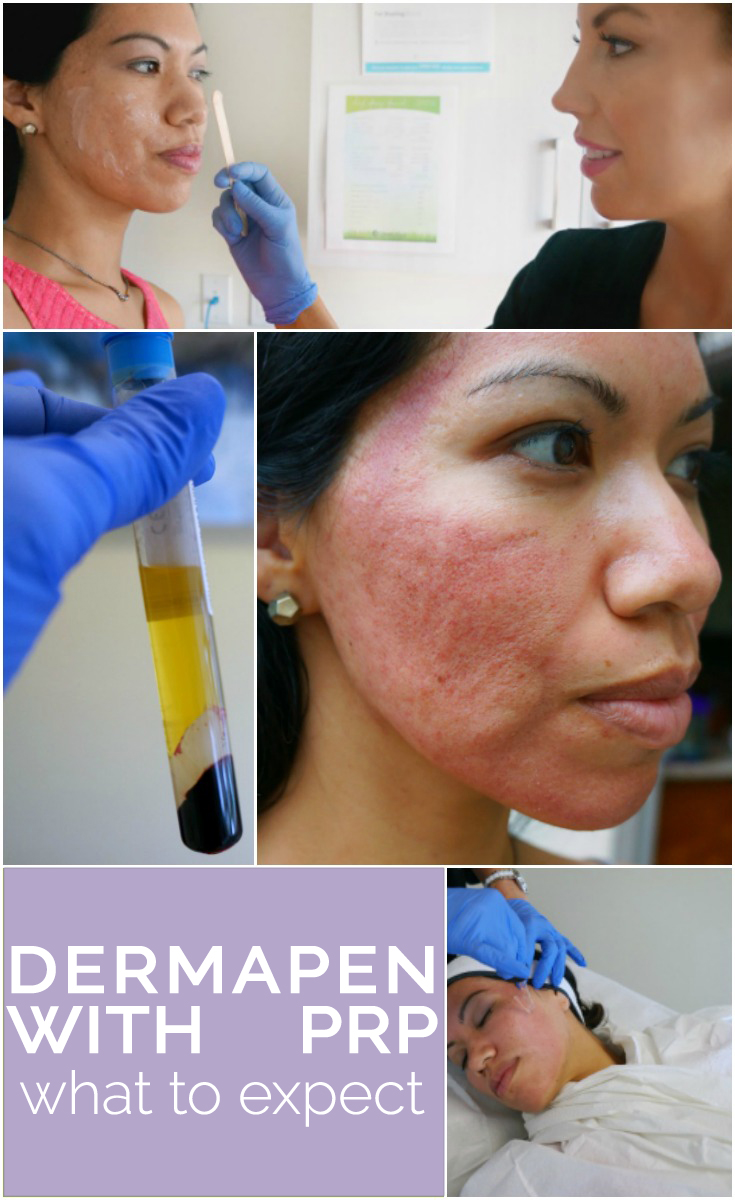 What to expect with Dermapen with PRP - http://livingmividaloca.com/dermapen-with-prp-review/