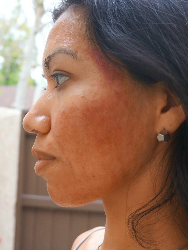 Dermapen with PRP side view // livingmividaloca.com