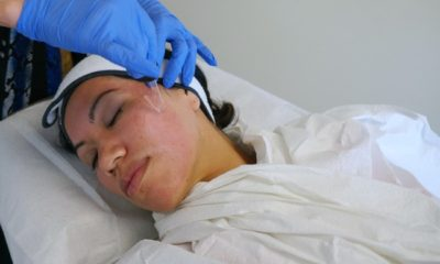 Dermapen treatment // livingmividaloca.com