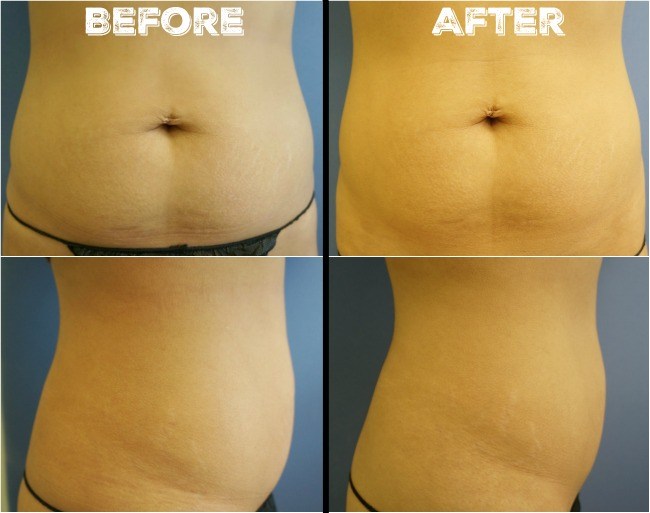 Trusculpt before and after pictures  // livingmividaloca.com