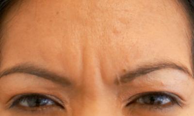 Wrinkles before Botox // LivingMiVidaLoca.com