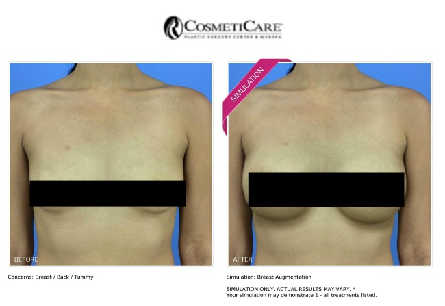 CosmetiCare New Look Now simulation for breast augmentation - LivingMiVidaLoca.com