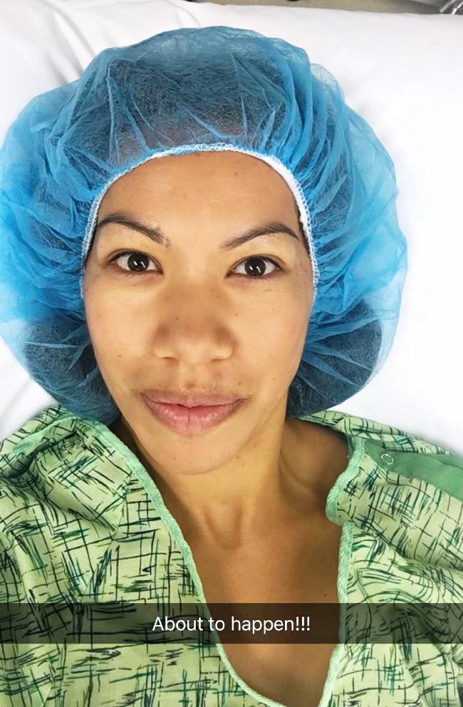 What happened on the day of my breast augmentation surgery - livingmividaloca.com