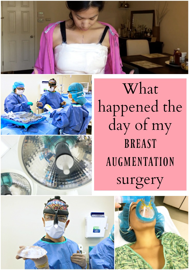 What happened on the day of my breast augmentation surgery - livingmividaloca.com