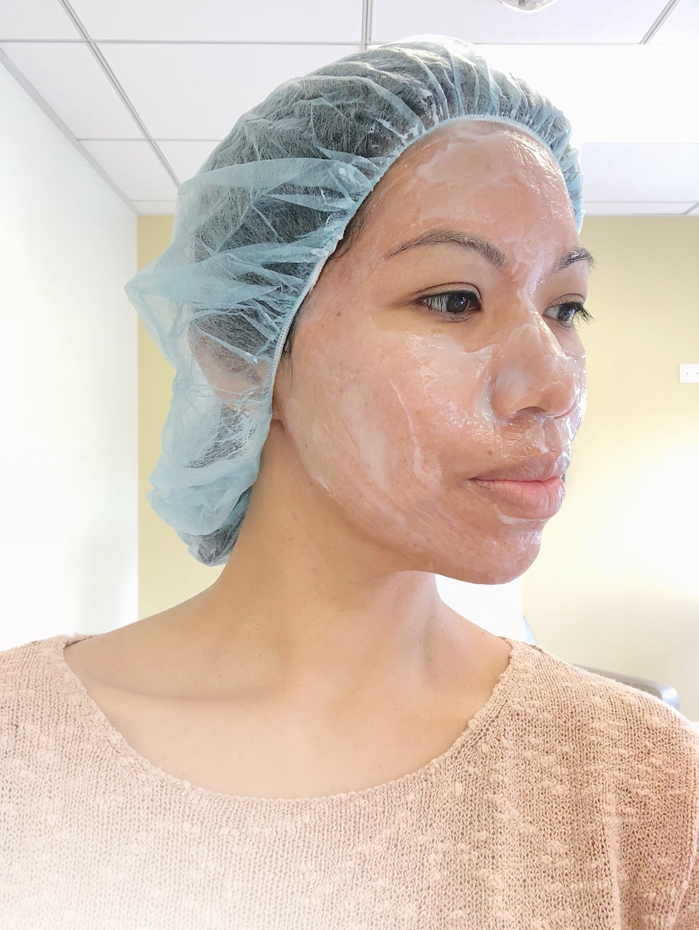 Microneedling with PRP at CosmetiCare to remove acne scars, uneven skin texture and large pores.   livingmividaloca.com   #cosmeticare #beautytreatments #spatreatments