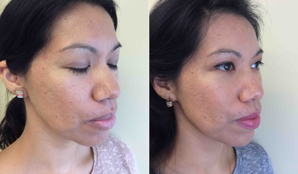 Microneedling with PRP at CosmetiCare to remove acne scars, uneven skin texture and large pores. | livingmividaloca.com | #cosmeticare #beautytreatments #spatreatments